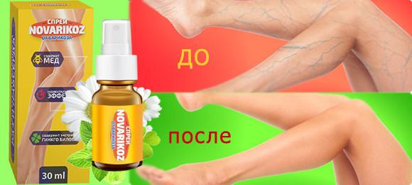 Средство Novarikoz — это новейшая разработка современной медицины, изготовленная исключительно на основе натуральных компонентов
