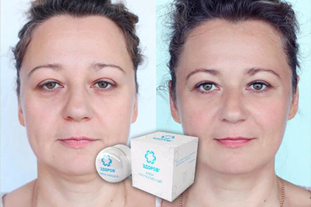 Эффективен против морщин и для общего омоложения кожи