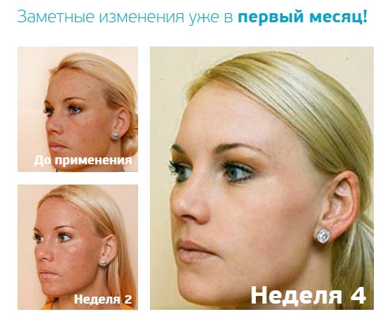 Натуральный состав отбеливающего крема Miracle Glow позволяет на высоком уровне сражаться с пигментацией кожи