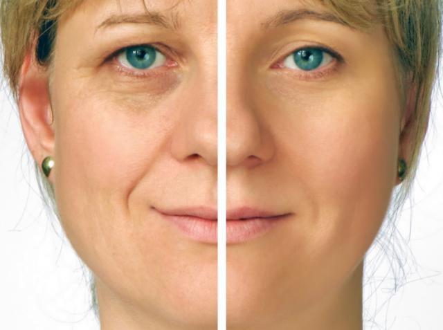Разглаживание кожи вокруг рта и носогубных складок