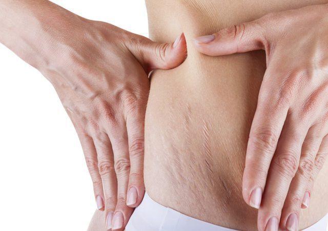 Чтобы успешно бороться с дерматологическим дефектом, необходимо знать их природу и причины возникновения