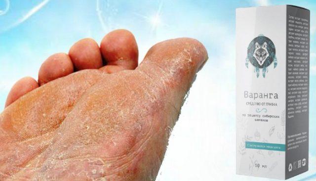 Средство от грибка Варанга поможет любому справиться с такой паразитной кожной болезнью