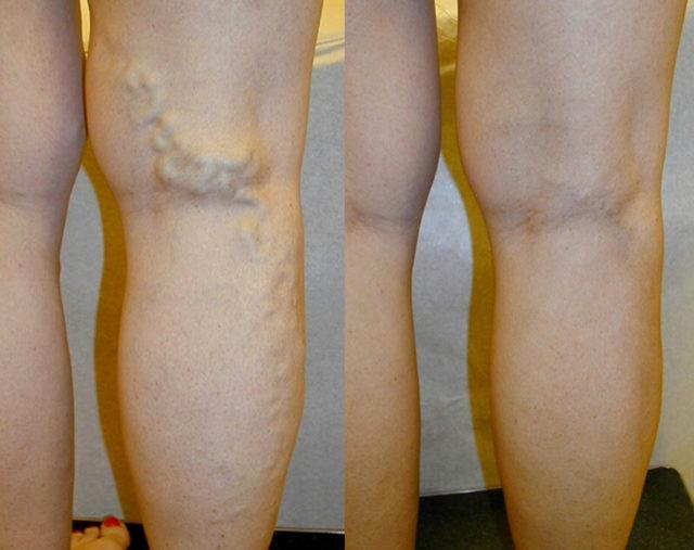 """После применения """"Акульего жира"""" в ногах появляется необыкновенная легкость, исчезают болезненные ощущения"""