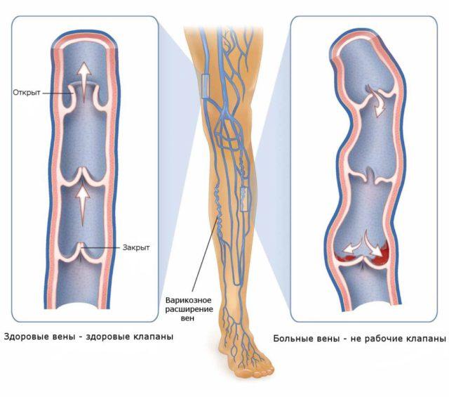 Варикоз – это патологическое расширение вен на ногах