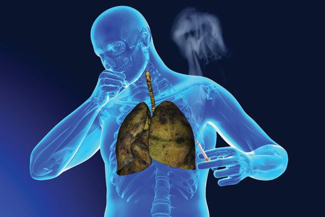 Но никотиновая зависимость носит не только психологический характер: табак вызывает сильнейшее привыкание организма