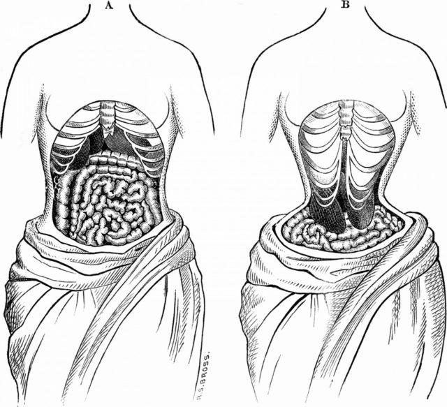 Хирургическое вмешательство в области соприкосновения с корсетом