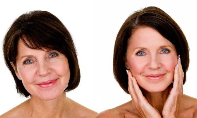 Механизм действия сыворотки предусматривает влияние не только на верхний слой кожи, но и клетки, находящиеся более глубоко