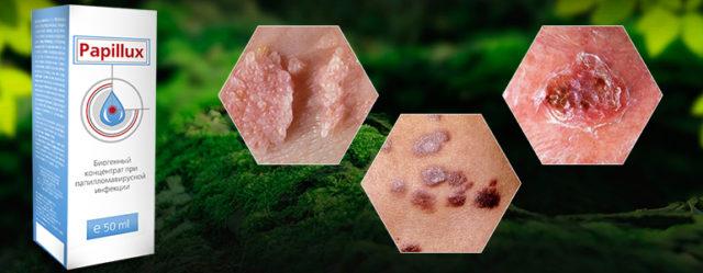 Биогенный трёхмерный концентрат Papillux содержит природные неизменённые формы активных компонентов, проявляющие полиактивность в отношении штаммов папилломавирусов