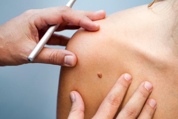 Устранение кожных образований